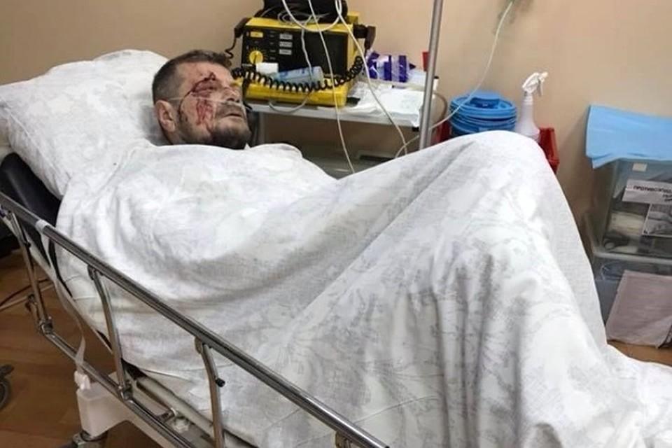 Геращенко назвал мощность сработавшего вКиеве взрывного устройства