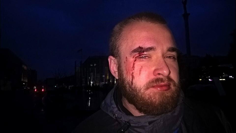 Появилось фото известного «киборга» после избиения вКиеве— Лицо вкрови