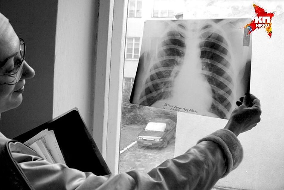 За 5 лет заболеваемость туберкулезом вНовосибирской области снизилась на17%