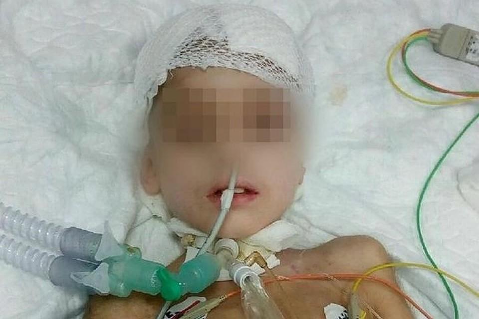 НаУрале скончался  ребёнок, которому летом выстрелил вголову нетрезвый  мужчина