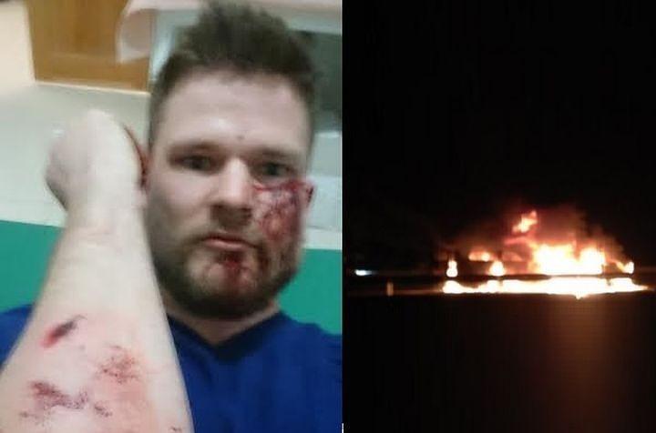 ВИнгушетии возобновили расследование нападения на репортеров