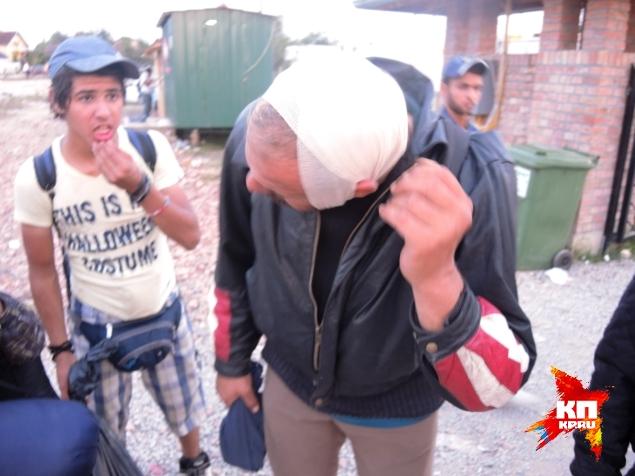 Мигрант показывает голову, разбитую венгерскими полицейскими Фото: Дарья АСЛАМОВА