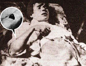 Труп Сергея Александровича на кушетке  в номере гостиницы. Правая рука согнута. На предплечье - рана с лоскутом кожи.