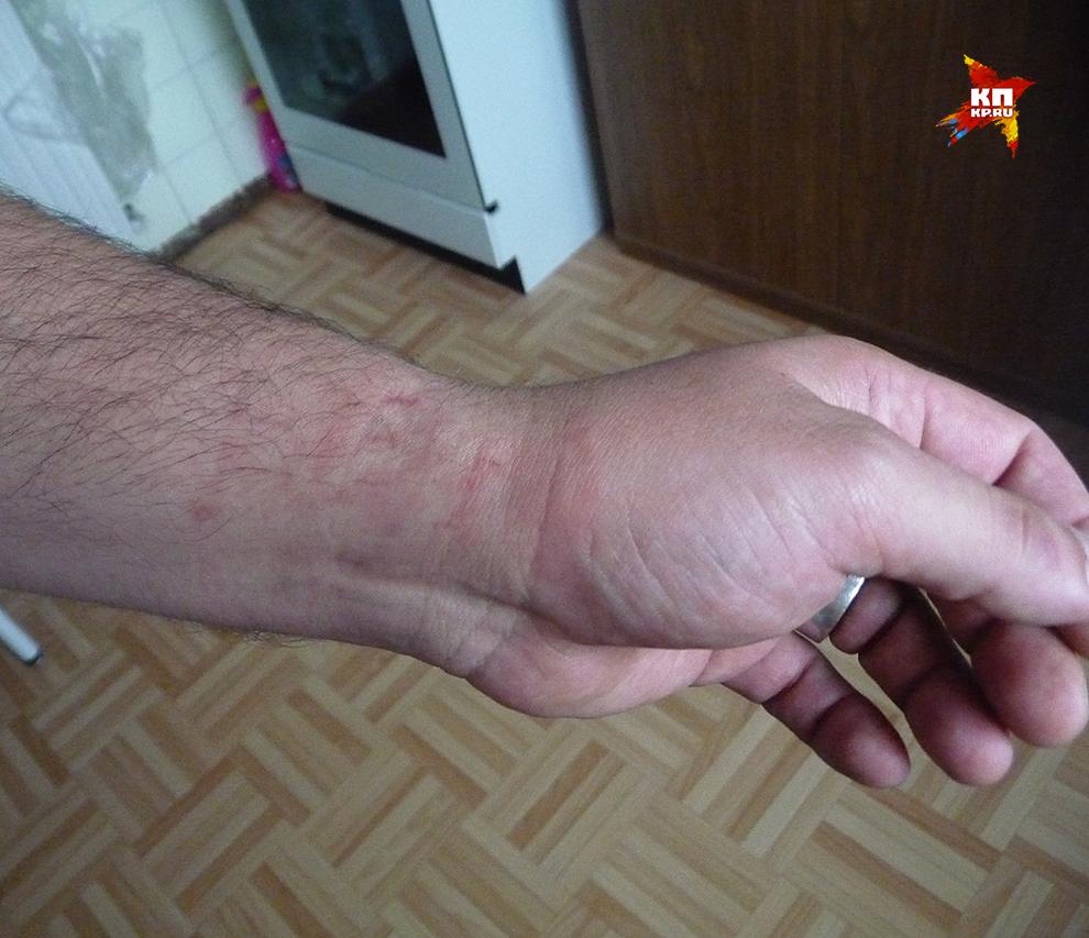 Перед нами повреждения кистей рук при попытках надевания на руку наручника, причём тогда, когда на другой руке «браслет» уже защёлкнут, и человек активно сопротивлялся завершению фиксации рук