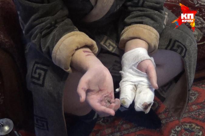 Праправнук двоюродного брата Ивана Поддубного был в больнице с тяжелыми травмами. Фото: Елена АЛЕКСАНДРОВА («КП» - Донецк»)