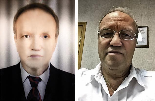 На фото слеваСемену Гендлеру 60 лет. До операции несколько месяцев. А так (на фото справа) он выглядит сейчас, в 65. Изменения в прямом смысле слова налицо. Фото: личный архив.