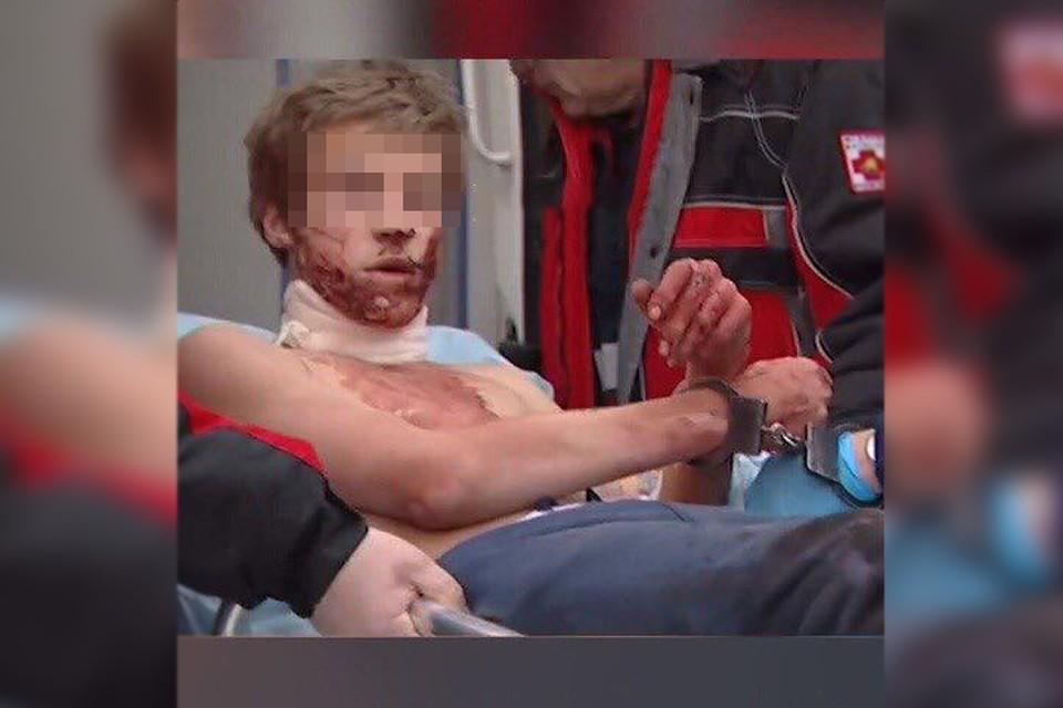 Леонид был прикован к каталке наручниками. Фото telegram.org