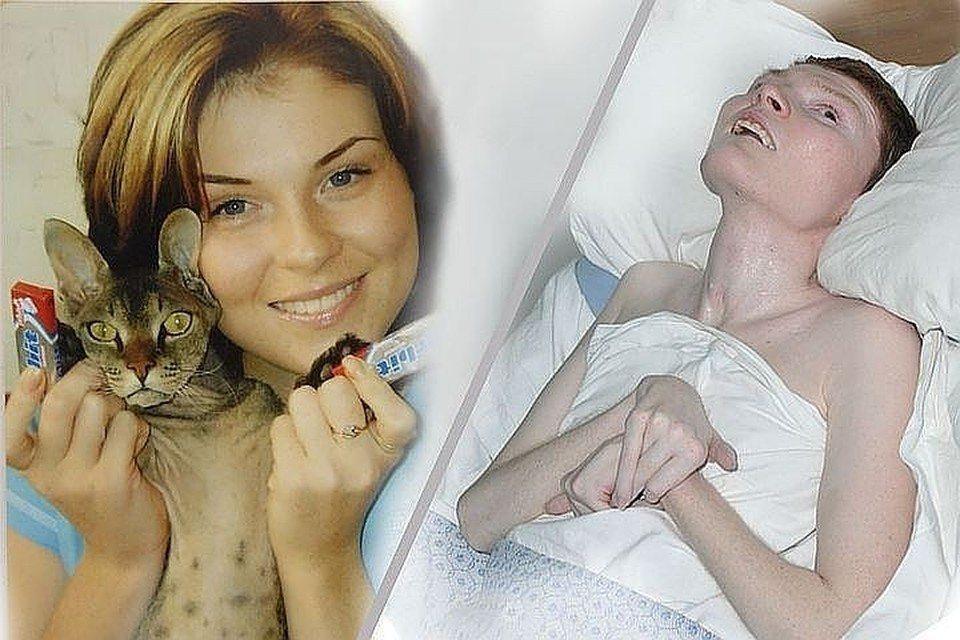 Ирина - до и с после трагедии