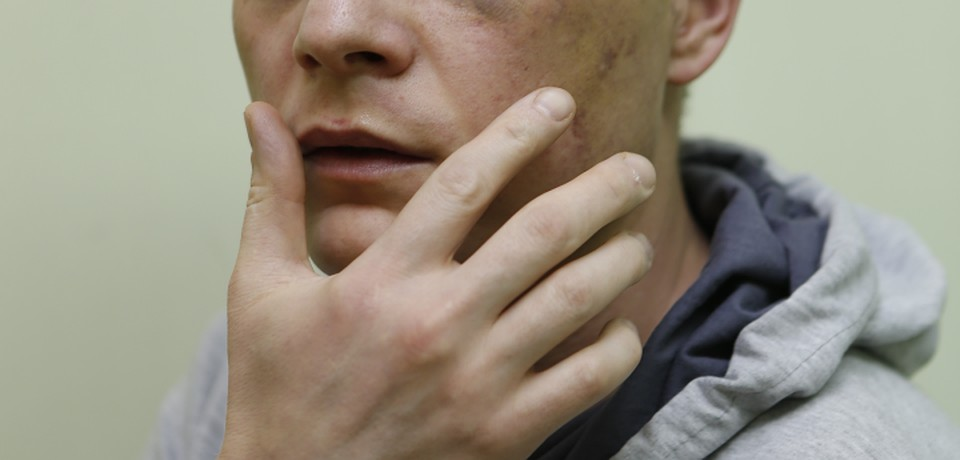 Лечение перелома челюсти в домашних условиях: правила 18