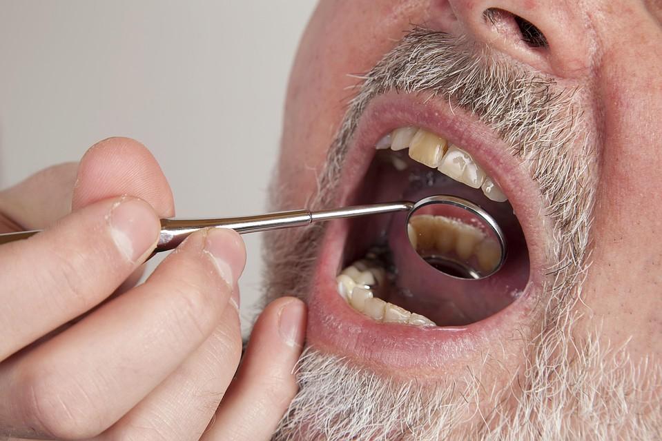 Trakice za izbeljivanje zuba crest