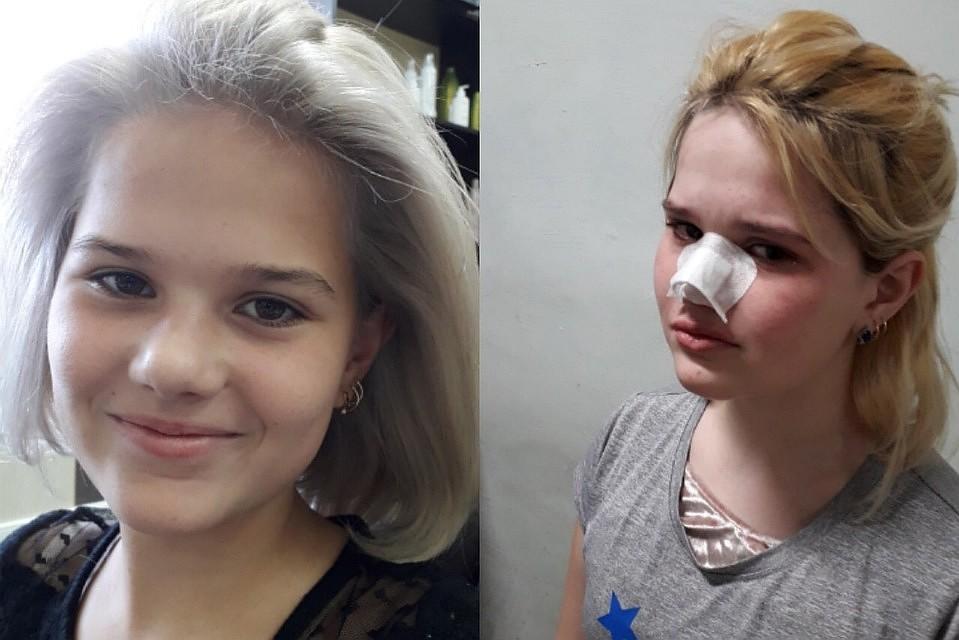 Дочка ссоры с мамой попала в психиатрическую