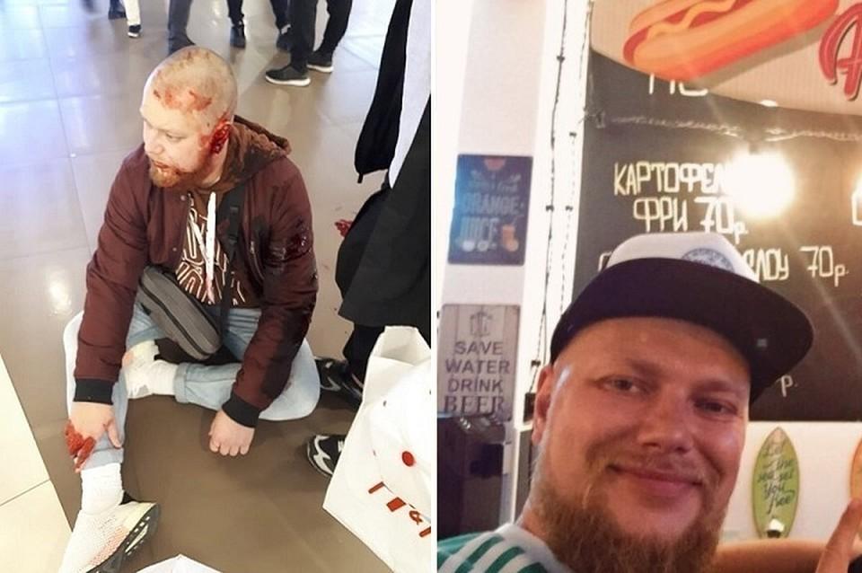 Артем рассказа, как его избили охранники Фото: ДТП и ЧП Петербурга/Личная страница героя публикации