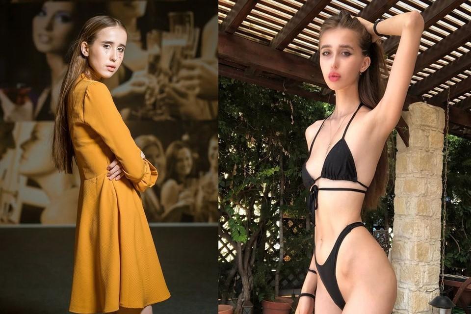 На фото слева - Катя до похудения, справа - после. Фото: соцсети/предоставлено Ириной Волчковой.