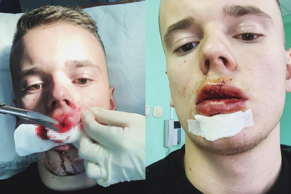 Юношу уже впустили из больницы, но проблемы на этом не заканчиваются - по словам Арсения, ему, возможно, придется удалять передние зубы. Фото: Instagram