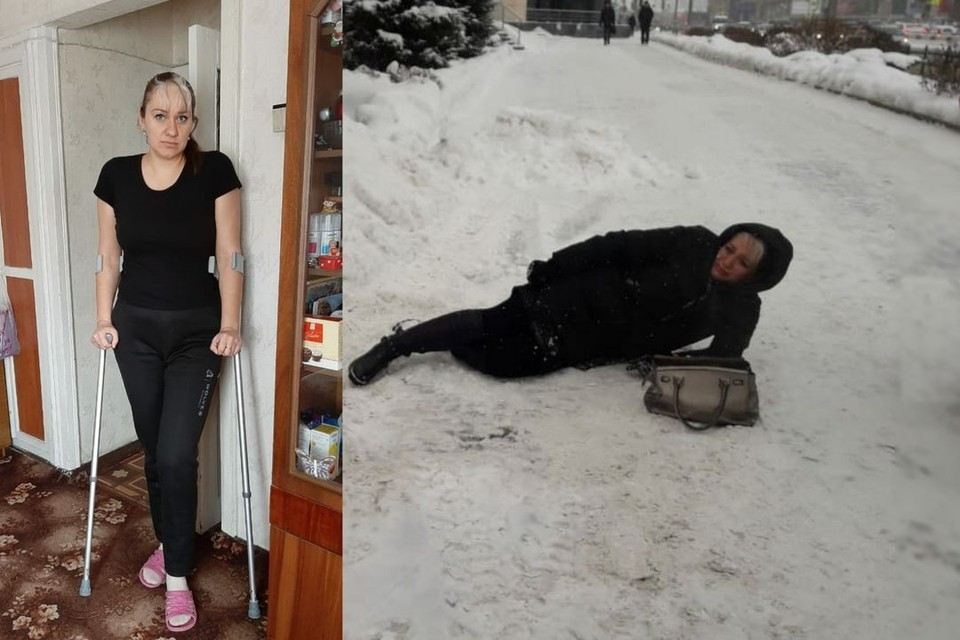 Сибирячка упала и сломала ногу из-за гололеда. Фото: личный архив.