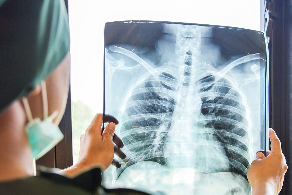 Россия, к сожалению, рекордсмен по количеству больных туберкулезом с выраженной лекарственной устойчивостью