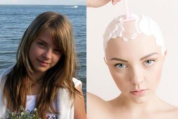 «Одноклассники издевались, а я молилась, чтобы волосы отросли»: как изменилась жизнь девушки, которая облысела в 13 лет