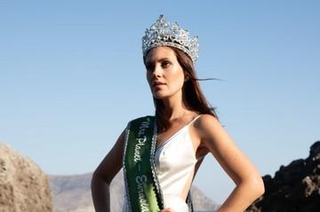 История современной Золушки: Укротила псориаз и стала королевой красоты