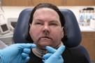 Медицинская сенсация: хирурги провели успешную операцию по трансплантации и лица и рук одновременно