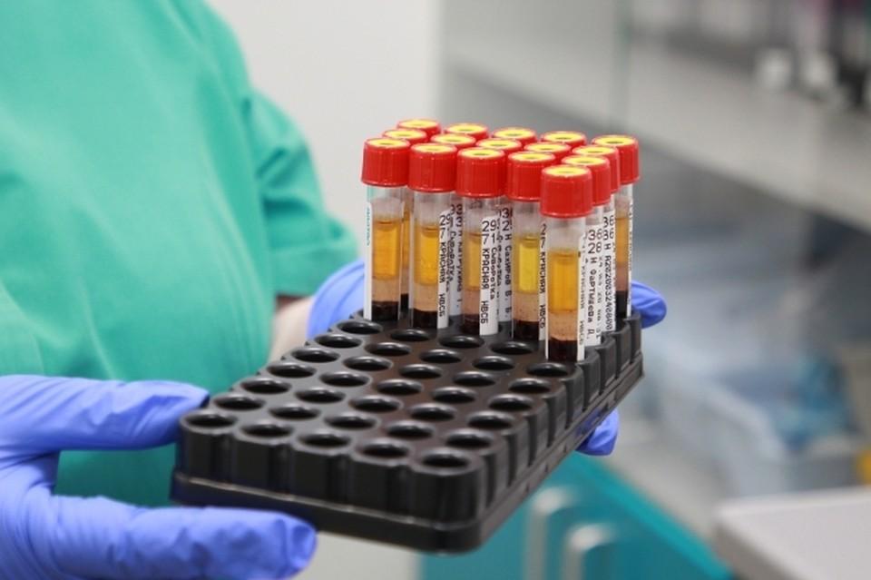 За все время коронавирус в ДНР выявили у 28 697 человек