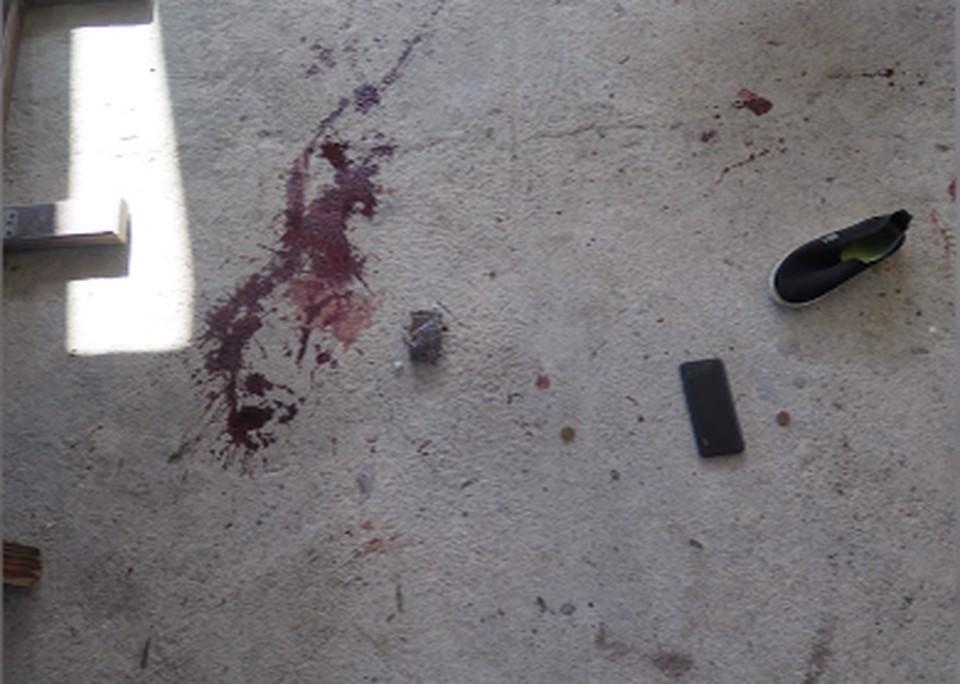 Самарец порезал двух человек в отеле в Абхазии. Фото: МВД Абхазии