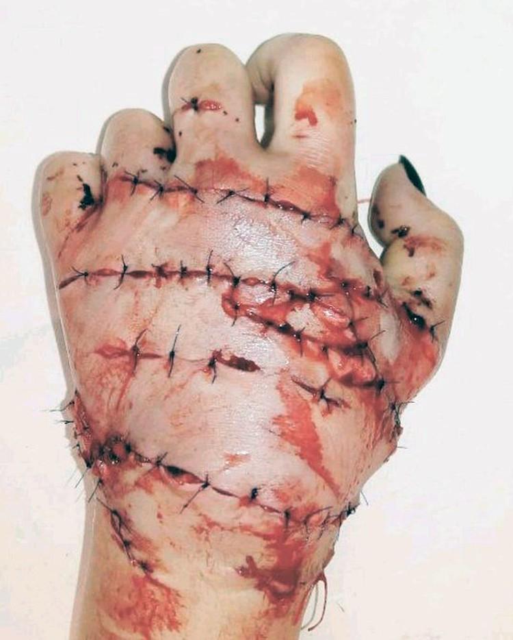 Рука Инны, буквально сшитая медиками, после девятичасовой операции.