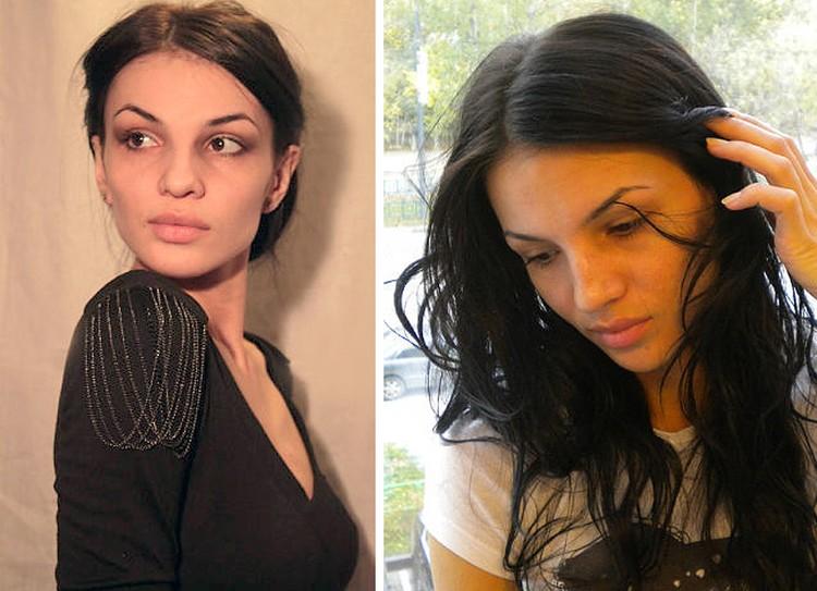Сотрудница московского салона красоты Марина Кушкова легла на операционный стол ради изменения формы носа.