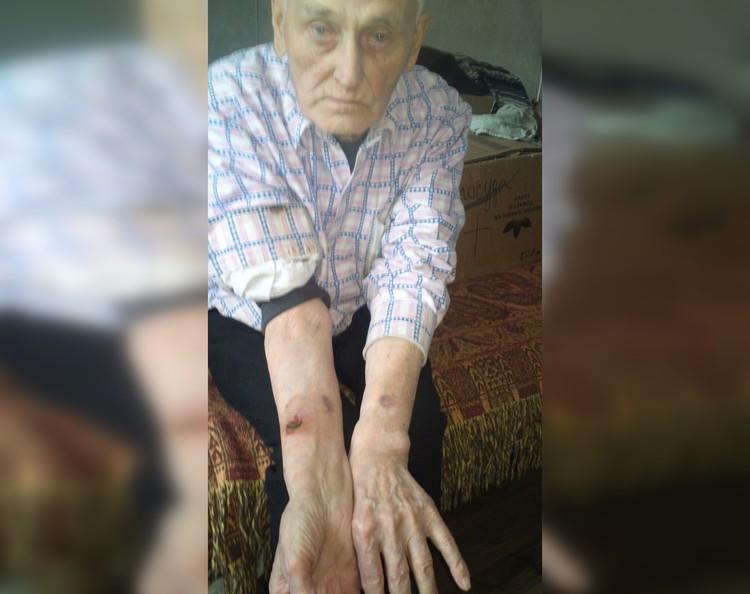 Вот такие раны получил Василий Николаевич. Фото Татьяны Ушаковой