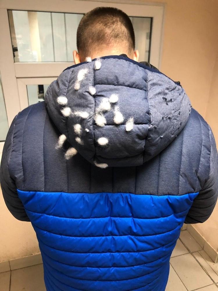 Капюшон куртки оказался изрешечен дробью