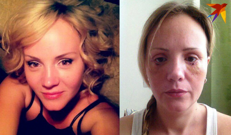 Слева Евгения до операции (фото с ретушью) и справа - через пару недель после хирургического вмешательства.