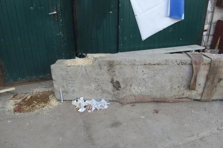 Бетонный блок нанес мужчине тяжелую травму ноги. Фото: СК.