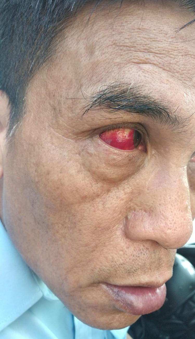 Таким глаз делает луч лазера, которыми пользуются протестующие. Фото: предоставлено полицией Гонконга.