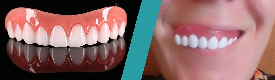 Ставят ли виниры на пломбированные зубы