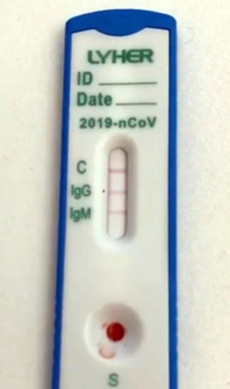 Тест на наличие антител Михайлов провел дома, теперь собирается подтвердить анализ в Роспотребнадзоре
