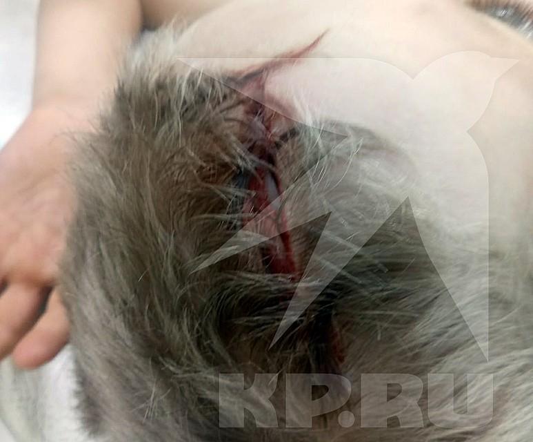 Семилетний мальчик попал в больницу с открытой черепно-мозговой травмой