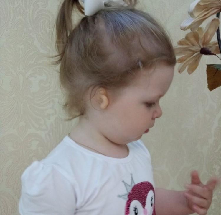 У Насти не развиты ушная раковина и ушной проход. Фото героев публикации.