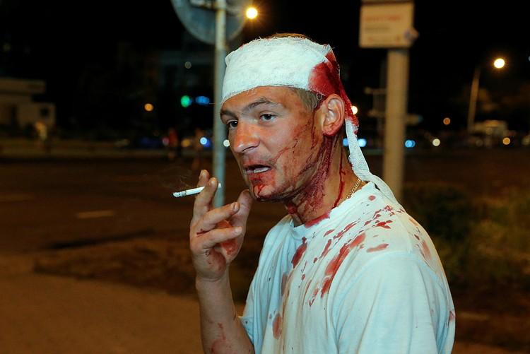 Многие протестующие получили ранения в стычках с милицией