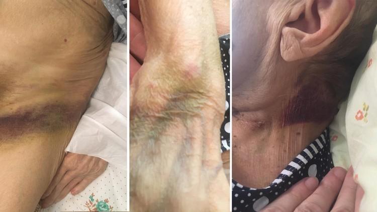 На теле женщины остались большие гематомы после избиения