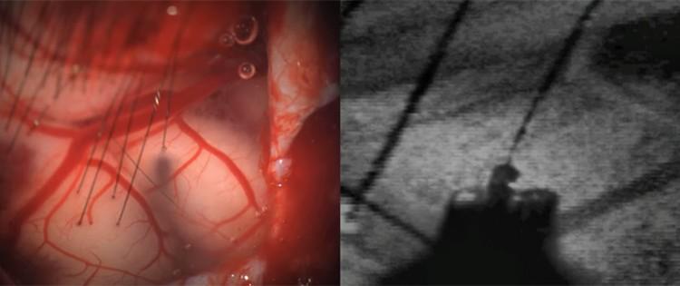 Специальный робот искусно монтирует нити с электродами в ткань мозга, при этом повреждение тканей и нервных клеток исключены