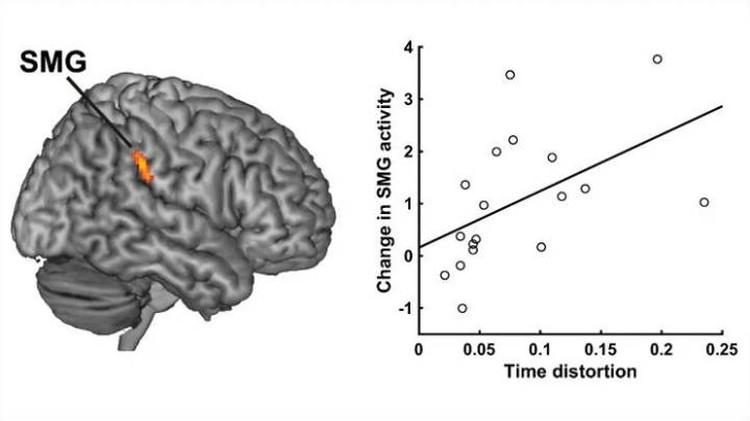 """Чем больше """"устает"""" чувствительная к времени извилина (обозначена оранжевым), тем сильнее искажено восприятие времени."""