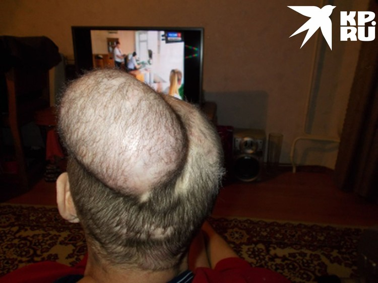 Хирург Виталий Игумнов возвращал волосы с помощью экспандерной пластики. Фото: личный архив героя.
