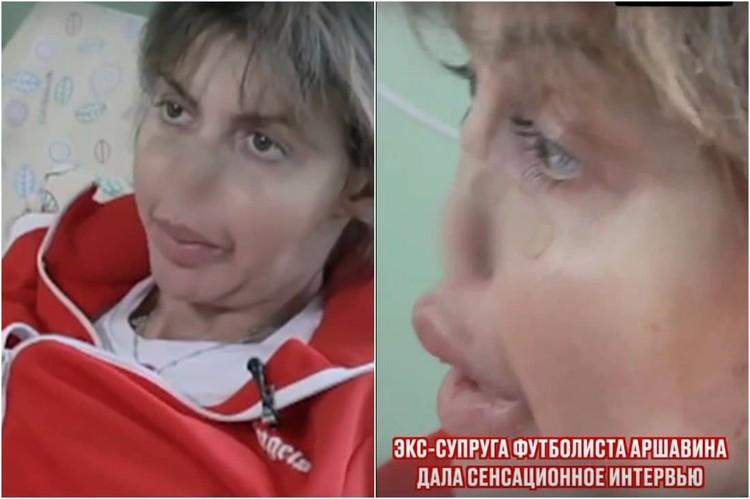 У Алисы Казьминой провалился нос